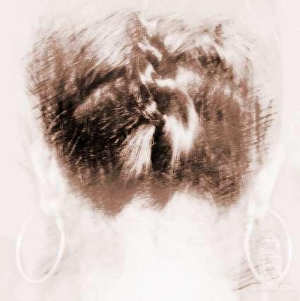 颈痣相代表什么