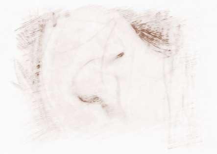 女性右耳朵背后有痣_
